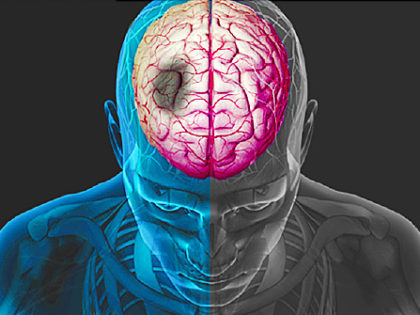 10 modifiable risk factors are responsible for 90% of strokes worldwide